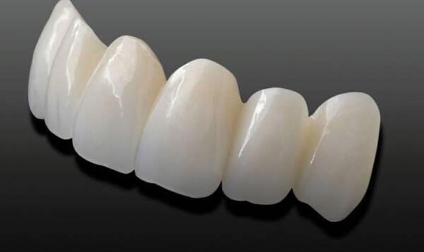Tuổi thọ răng 1 phần phụ thuộc vào nhiều yếu tố khách quan bên ngoài