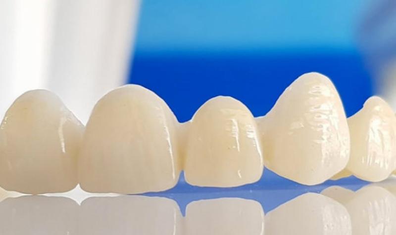 Răng sứ Emax được áp dụng công nghệ CAD/CAM