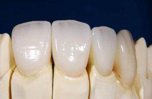 Trình độ chuyên môn nha sĩ có ảnh hưởng rất lớn tới tuổi thọ của răng sứ Cercon