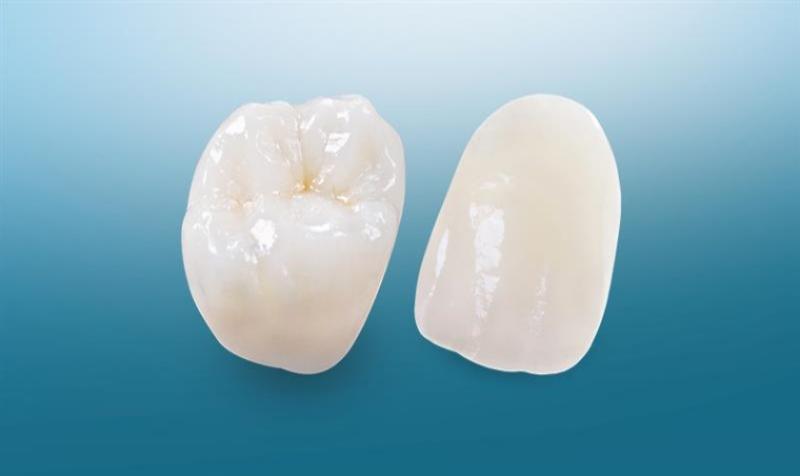 Răng sứ Esthetic Maximum có độ an toàn lành tính