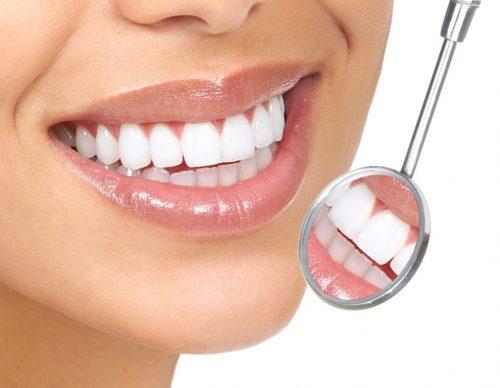 Răng sứ cũng được vệ sinh thường xuyên 2 lần sáng tối
