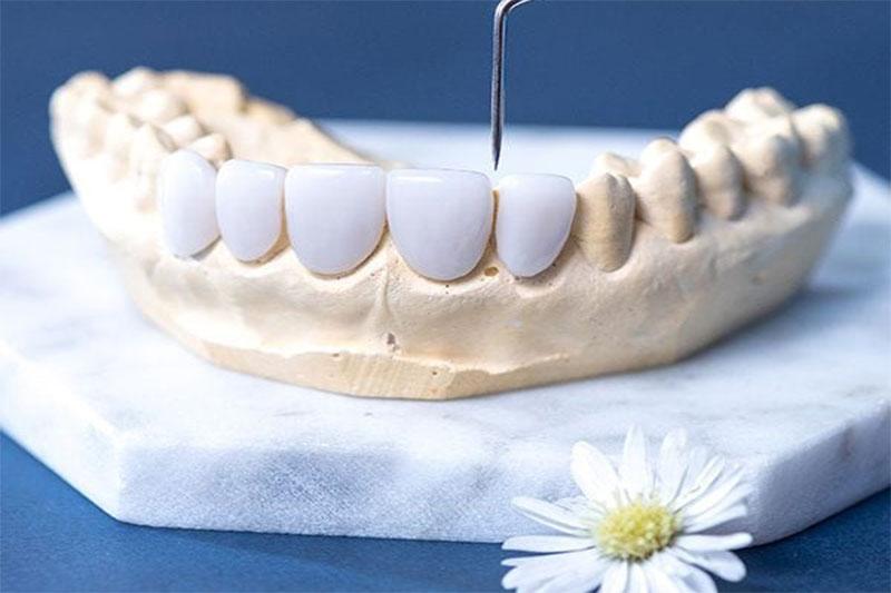 Ưu nhược điểm răng sứ Emax