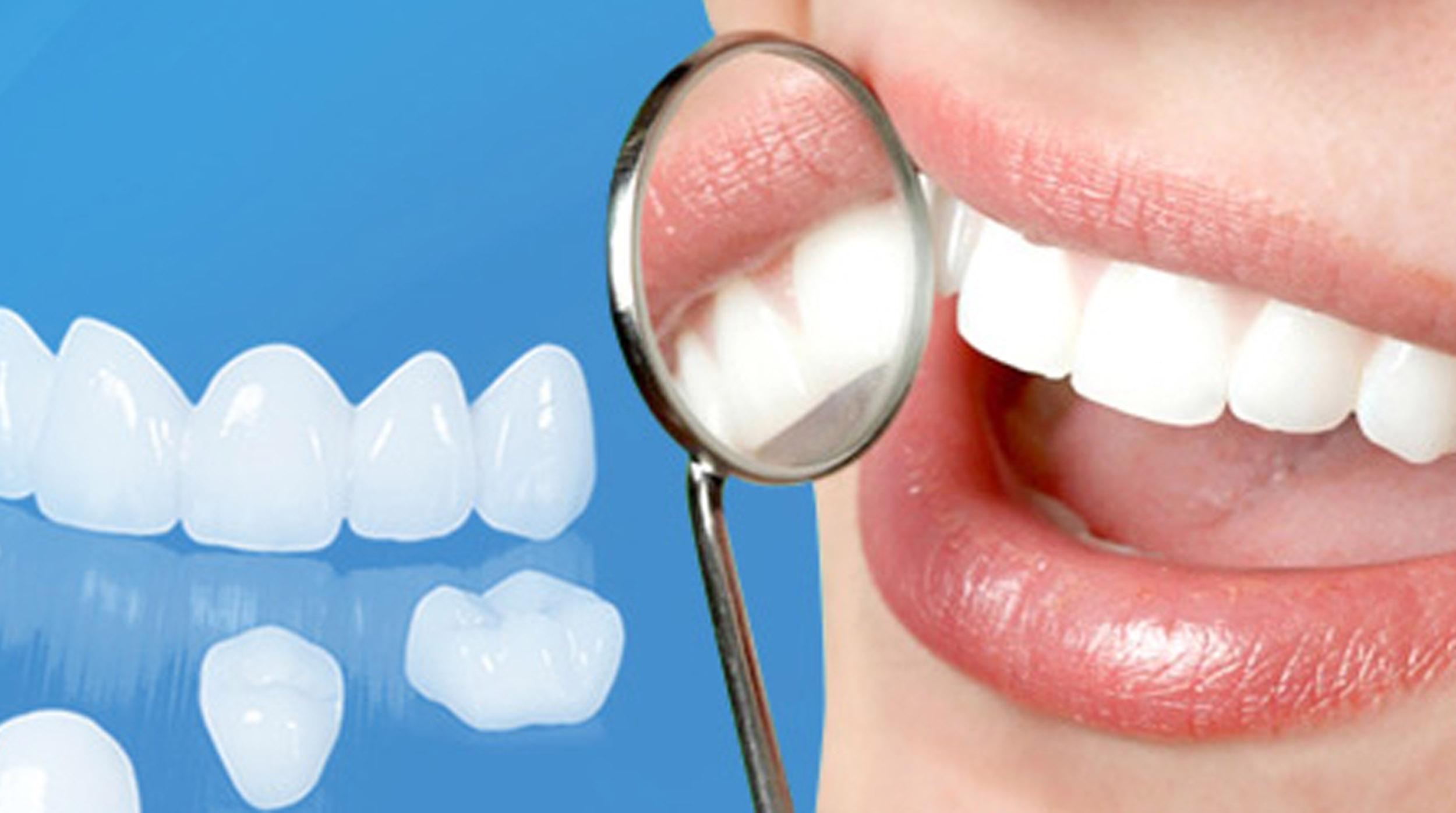 Răng được tạo 4 lớp men sứ giúp độ bóng chuẩn xác