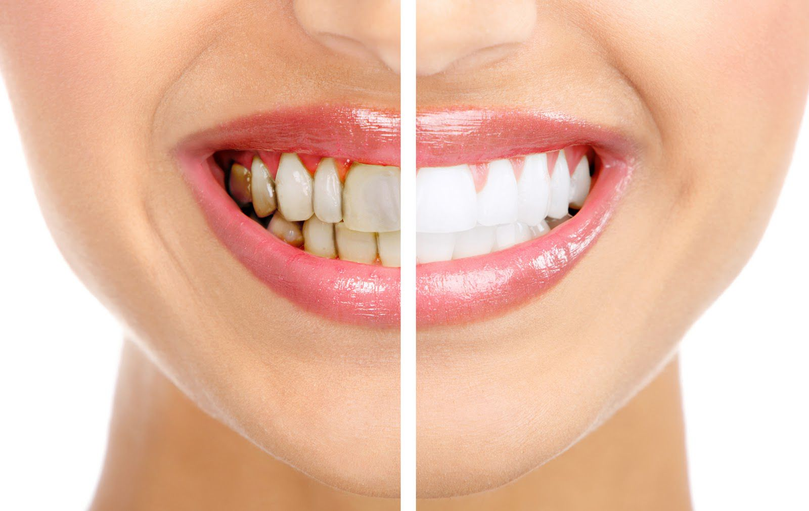 Bảng giá và bảng màu răng sứ Zirconia mới nhất cung cấp nhiều sự lựa chọn phù hợp