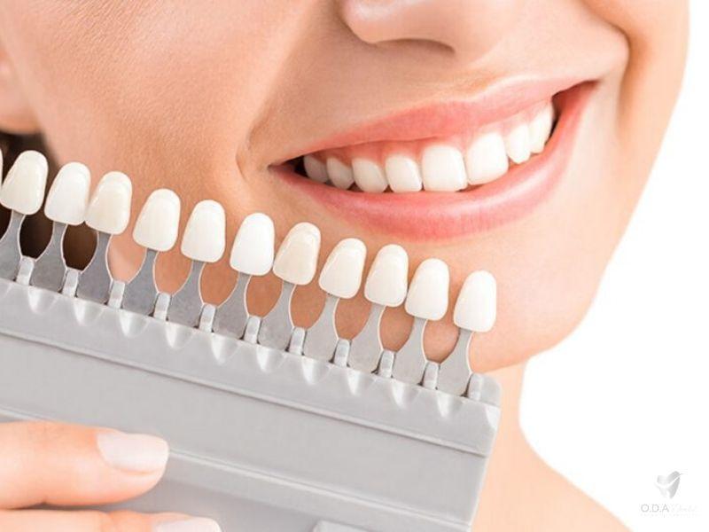 Bảng màu răng sứ Zirconia được sử dụng rộng rãi đáp ứng nhu cầu của mọi người