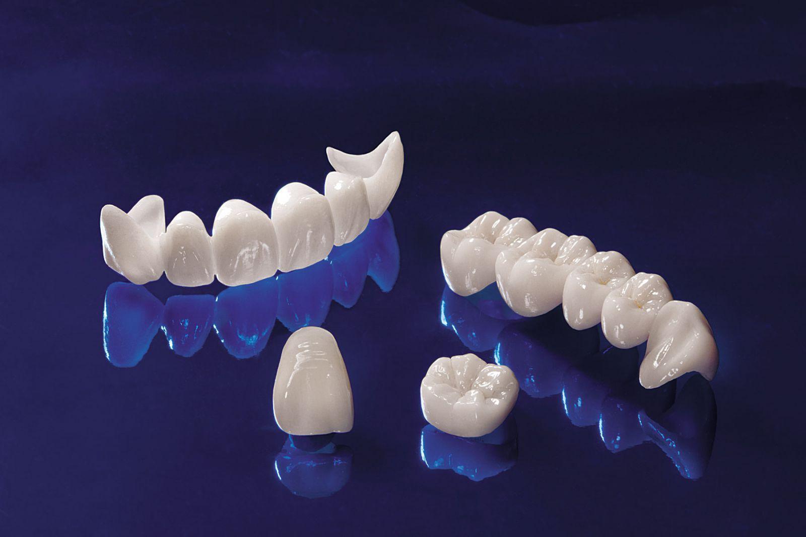 Bọc răng sứ đã trở thành một phương pháp thẩm mỹ được ưa chuộng hiện nay