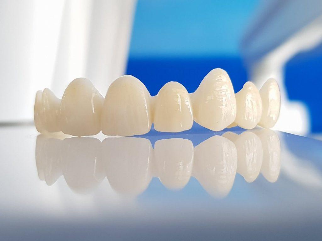 Dòng Cercon HT đã khắc phục triệt để những nhược điểm của răng sứ Cercon thường