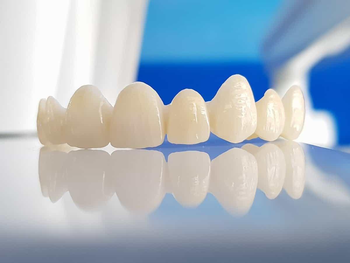 Răng Cercon là một trong số những dòng răng không kim loại tốt nhất hiện nay