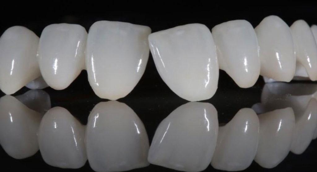 Tính thẩm mỹ cao và tương đồng với răng tự nhiên