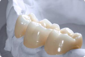 Răng sứ Cercon Zirconia được làm với màu trắng tự nhiên và sáng như răng thật