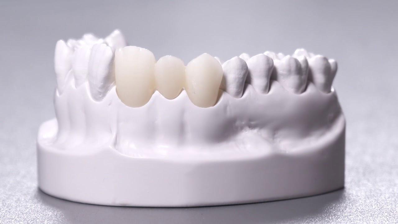 Răng sứ Zirconia rất khó phân biệt với răng thật khi nhìn bằng mắt thường