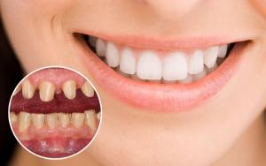 Răng sứ Zirconia sản xuất bằng công nghệ CAD/CAM được nung ở nhiệt độ cao