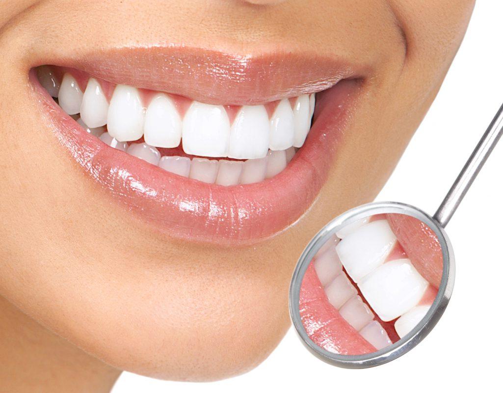 Răng toàn sứ cao cấp có tuổi thọ cao hơn khoảng 15-20 năm