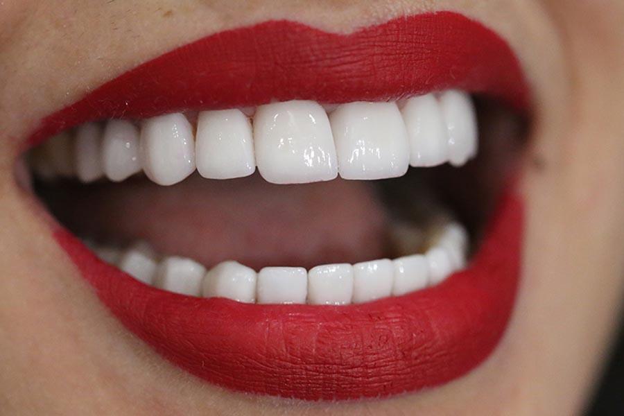 Tuổi thọ răng sứ Zirconia có thời gian là khoảng 15-30 năm