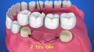 Khái niệm cầu răng là gì?