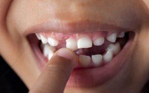 Viêm nha chu có thể khiến răng bị lunng lay