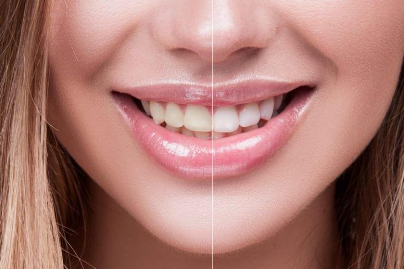 Răng bằng Emax có màu sắc ổn định