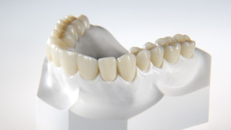 Sản phẩm sở hữu độ cứng nổi bật quá so với răng tự nhiên
