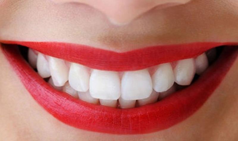 Từng loại vật liệu tạo nên răng sứ sẽ có chi phí không giống nhau