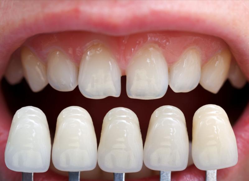 Emax Press có thấu quang cao tương tự như ngà răng