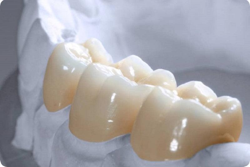 Răng Zirconia có màu sắc trắng tự nhiên giống y răng thật