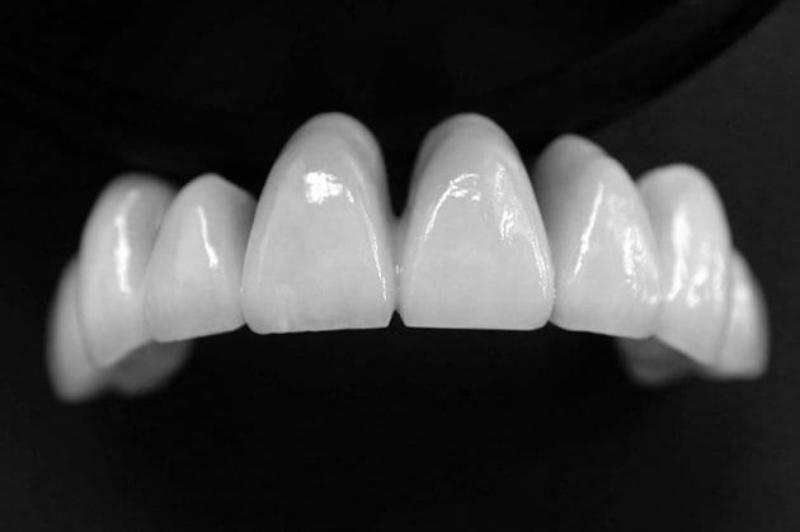 Bảng màu răng sứ cercon được phủ bằng 1 màng sứ bóng