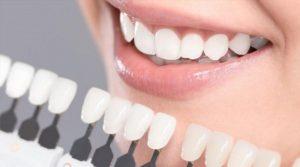 Răng giữ độ trắng sáng lâu