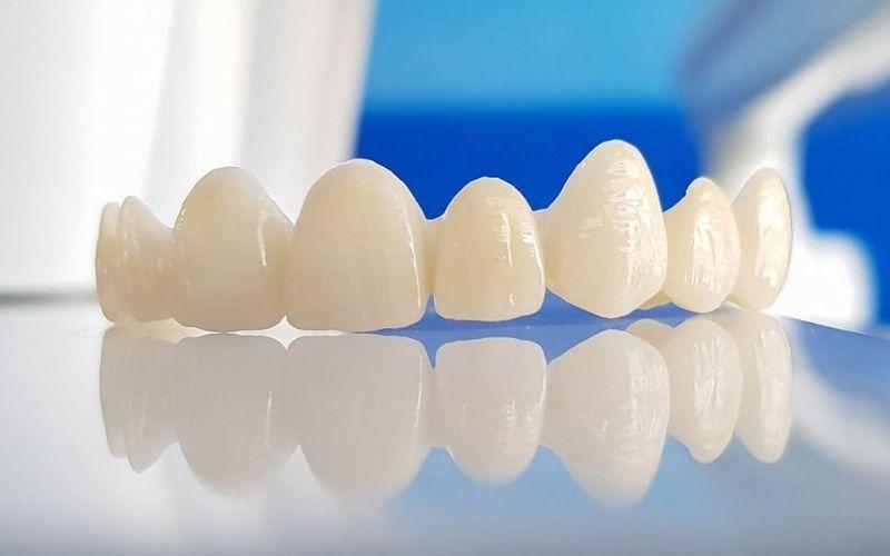 Dạng răng sứ này có độ bền chắc vô cùng cao