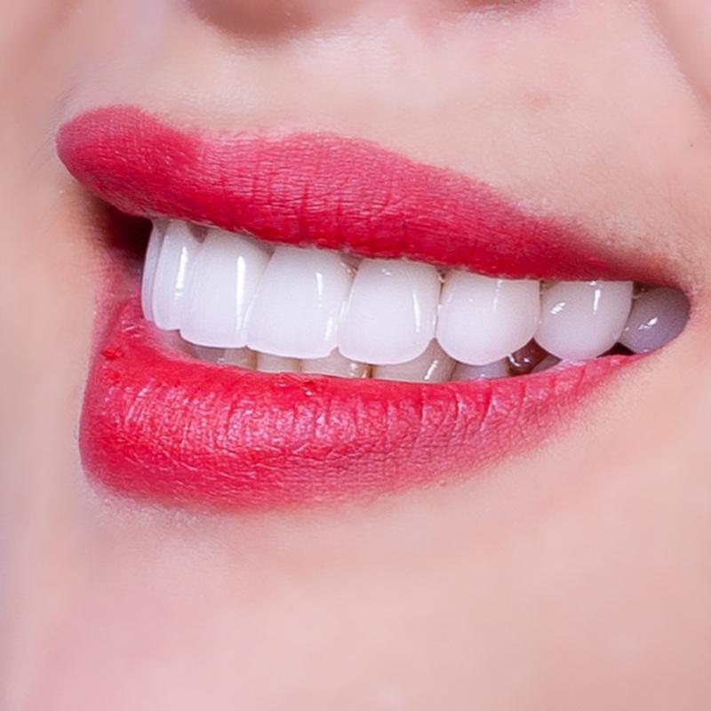 Răng sứ Emax giá bao nhiêu
