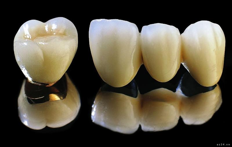 Răng sứ Emax và Cercon có chi phí không có sự khác biệt nhiều