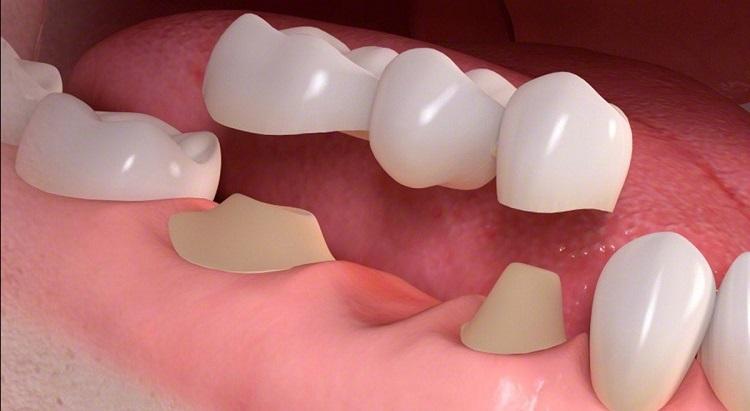 Cầu răng sứ tốt cho những trường hợp nha sĩ khuyên làm