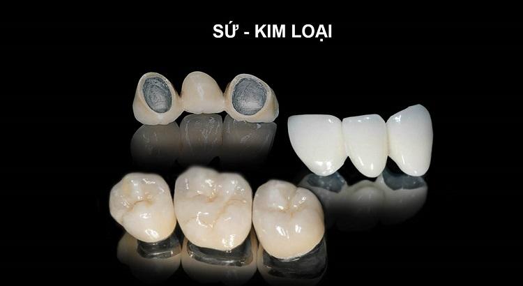 Làm cầu răng cứ chỉnh nha vị trí răng bị mất