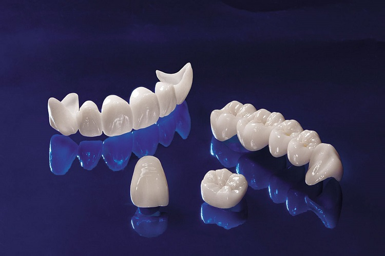 Cầu răng sứ bị đau có thể do nha sĩ mài quá tay