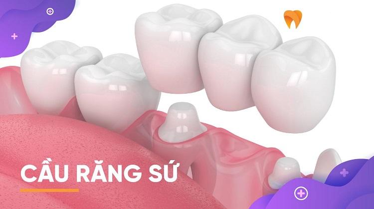 Làm cầu răng sứ hết 3 lần đi phòng khám