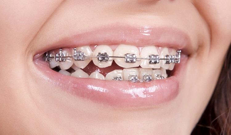 Làm cầu răng sứ riêng lẻ thì có thể niềng răng được