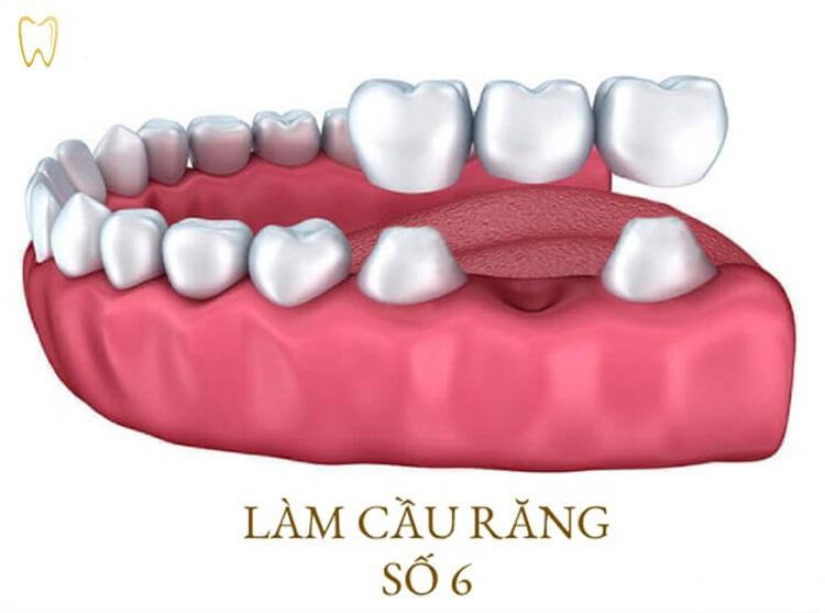 Làm cầu răng sứ xong niềng răng phải đi thăm khám đều đặn
