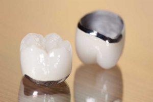 Sử dụng mão răng để bảo vệ chiếc răng yếu