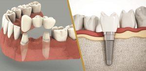 Làm cầu răng hay trồng răng Implant thì hơn?