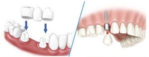 Trồng răng sứ hay trồng Implant tốt hơn?