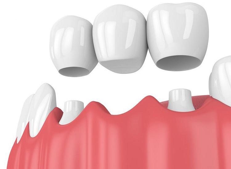 Phương pháp trồng răng sứ