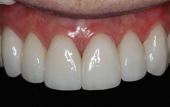 Răng Emax CAD áp dụng được cho tất cả trường hợp