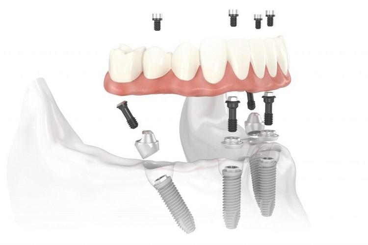 Trồng răng Implant cũng không quá lâu