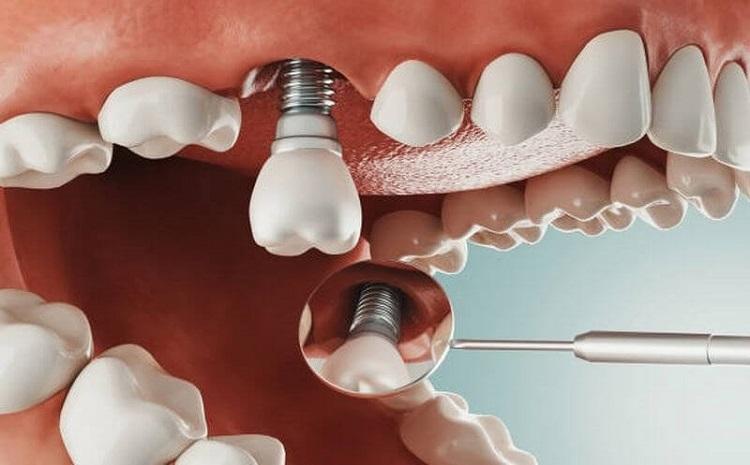 Trồng răng Implant vài giờ sau là ăn được