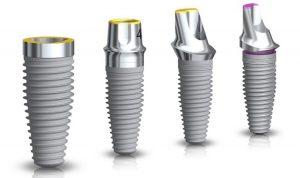 Chất lượng trụ Implant kém mới làm hôi miệng