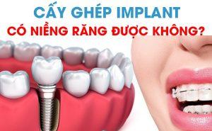Trồng răng Implant xong khó niềng răng được