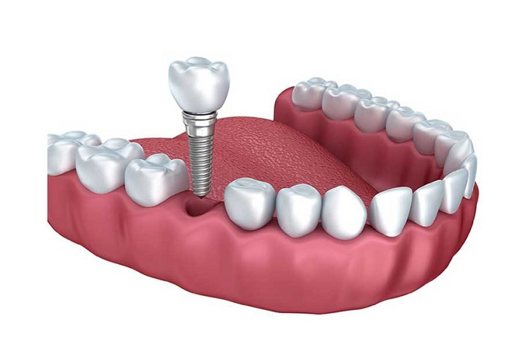 Nên niềng răng trước khi trồng răng Implant