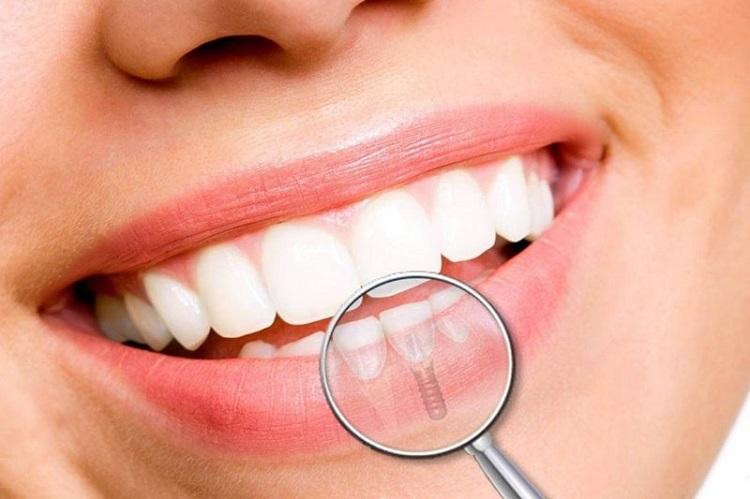Chăm sóc răng miệng sau khi trồng Implant cẩn thận