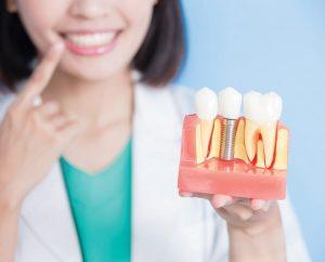 Bảng giá trồng răng Implant chi tiết