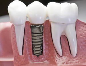 Cách trồng răng Implant là gì?