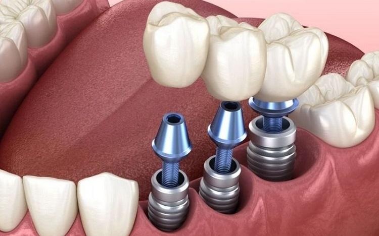 Phương pháp trồng Implant chi phí cao